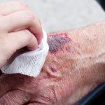 cura-ferida-sagnant